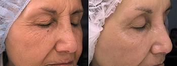 Ögon, medium behandling, före och efter