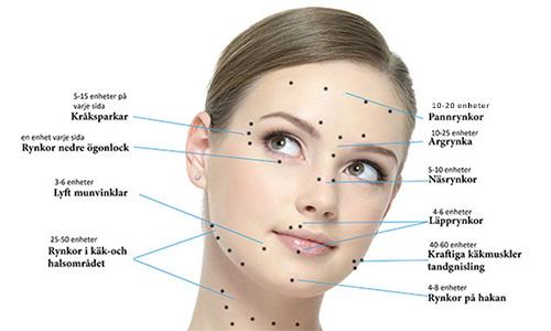 Botox, områden